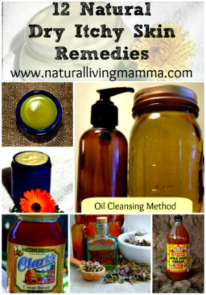 12 Natural Dry Itchy Skin Remedies & Recipes
