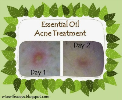 How to Make a DIY Acne Treatment with Essential Oils that Works