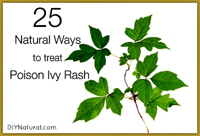 25 Natural Ways to Deal With Poison Ivy Rash