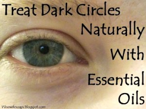 All Natural Essential Oil Treatment for Dark Circles