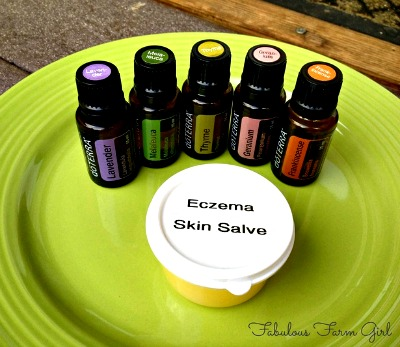 How to Make a Homemade Miracle Eczema Skin Salve