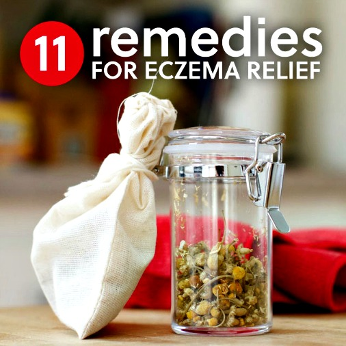 11 Healing Home Remedies for Eczema 1