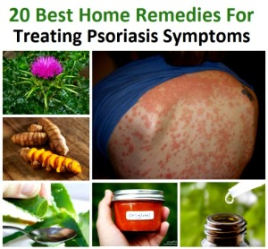 20 Best Home Remedies For Treating Psoriasis Symptoms