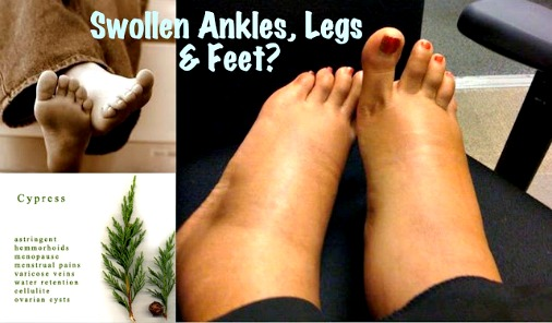 Best Essential Oils for Swollen Ankles, Legs and Feet