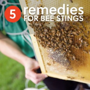 5 Effective Home Remedies for Bee Stings