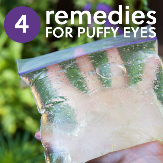4 Remedies for Puffy Eyes