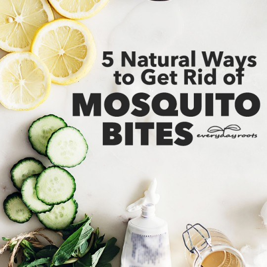 5 Natural Ways to Get Rid of Mosquito Bites | Everyday Roots